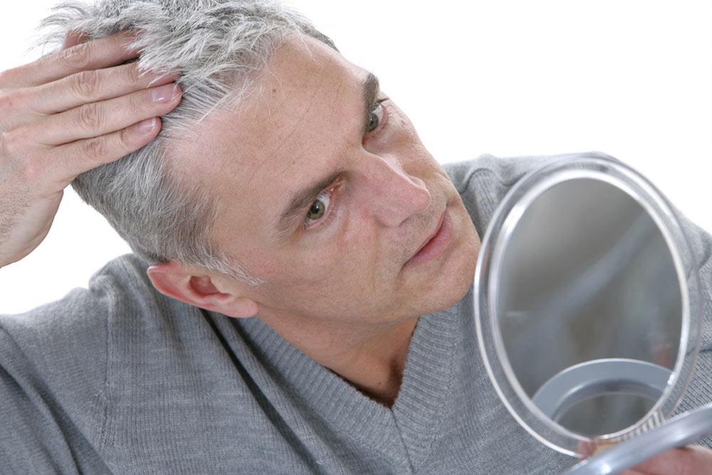 protesi capelli su misura