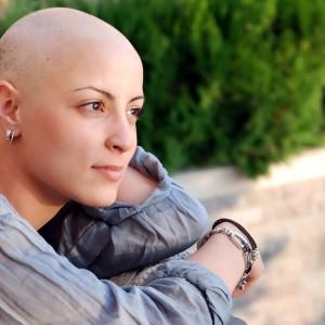 parrucche alopecia areata, parrucche alopecia prezzi